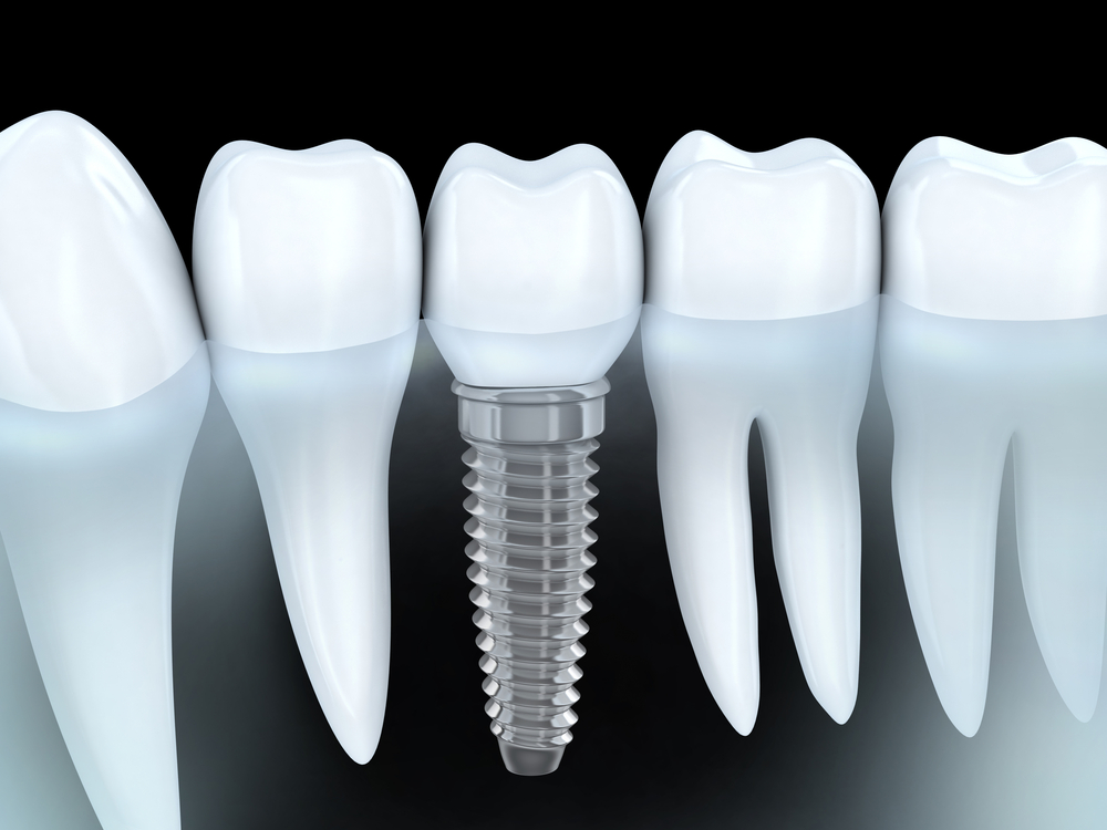 Dental Implants Kitchener